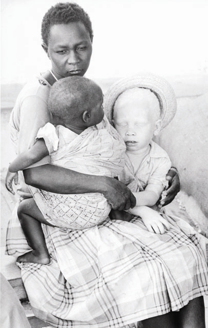 A woman with her two children, one of which is albino. Tanzania.
