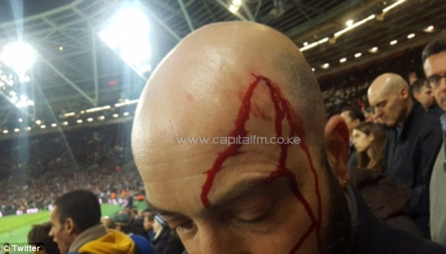 One Chelsea supporter was spotted with a cut on his head after a coin allegedly struck him. PHOTO/DM.